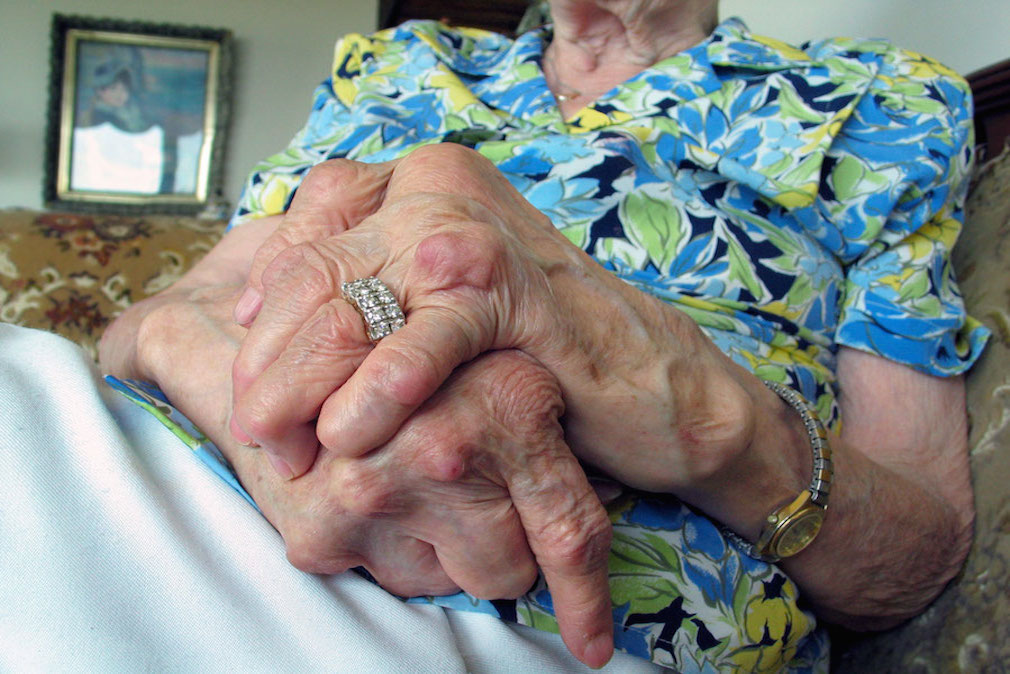 Arthritis on rise in Aust: Study